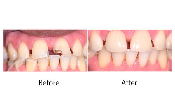 Dental emergency before and after photos